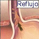 reflujo1